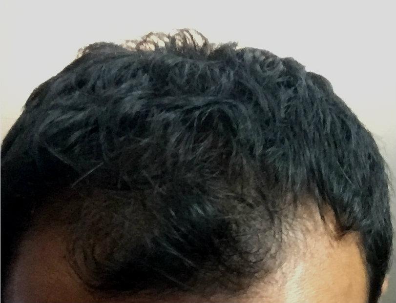 Male Pattern Baldness Nofap